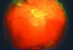 Proliferative diabetische Retinopathie mit Einblutung in den Glask örper